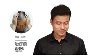 m型发际线植发有办法调整吗