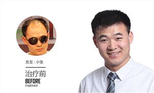 男士发际线两边高,植发发际线能改善吗