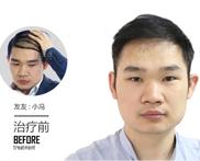 为何脱发男性居多