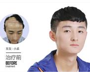 为什么人会一直不停的掉头发