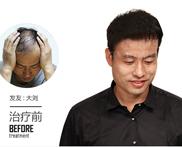 男性脱发用生姜擦头皮有用么怎么样
