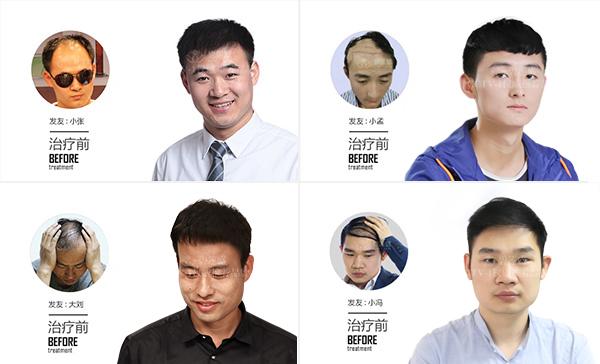 为什么治疗脱发的特效药非那雄胺没有普及?