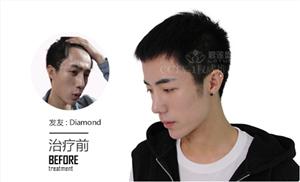 发际线调整后多久会长出头发