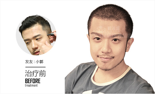 男性做胡须移植技术后如何护理