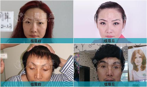 眉毛 女人/图:碧莲盛眉毛种植前后对比