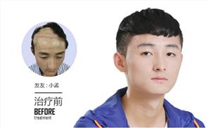 脱掉的头发要怎么种回来呢