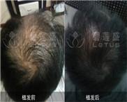 济南有专业的种植眉毛医院吗