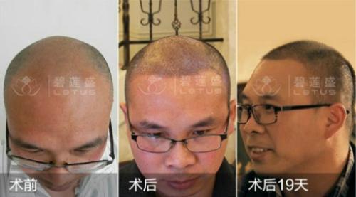前额m型脱发能治愈不