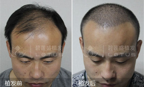 脂溢性脱发是怎么回事?脂溢性脱发应该如何治疗?