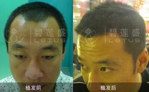 前额发际线脱发移植头发需几次植完