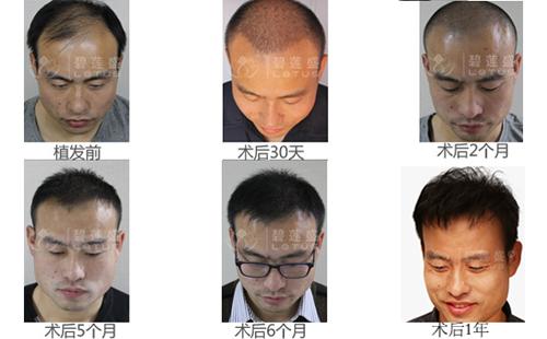 植发后效果图