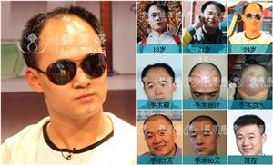男士前额脱发能治好吗