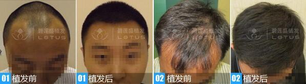 头发移植原理