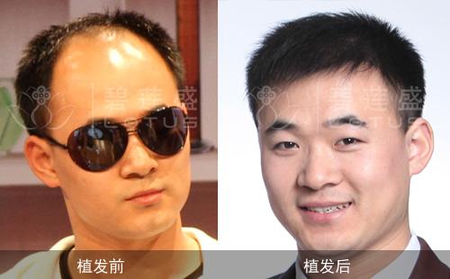 额角头发少也能做植发吗