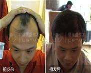 sht无痕植发手术能改善精神性脱发吗?