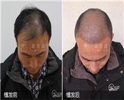 男性头顶脱发该怎么办?必须植发改善吗?