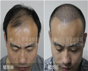 男士大M做发际线能调整植发