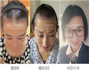 女性脂溢性脱发能够植发改善吗?脂溢性脱发还能不能治愈?