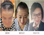 北京市哪家医院毛发移植好 女性脱发植发去哪里好