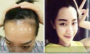 女性头发稀少可以做植发吗