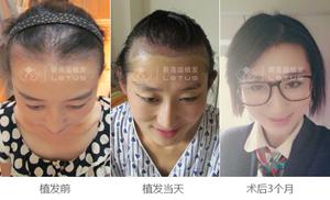 女性发际线高做植发有效果吗
