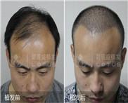 脂溢性脱发北京市种植头发需要多少钱