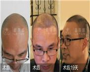 北京市植发一般需要需多少钱