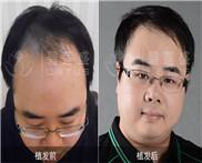 男人额头M型脱发如何解决