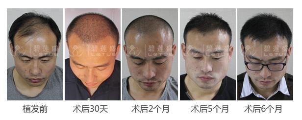 植发技术效果图对比