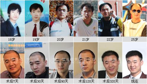 头皮植发技术需要切割头皮吗?