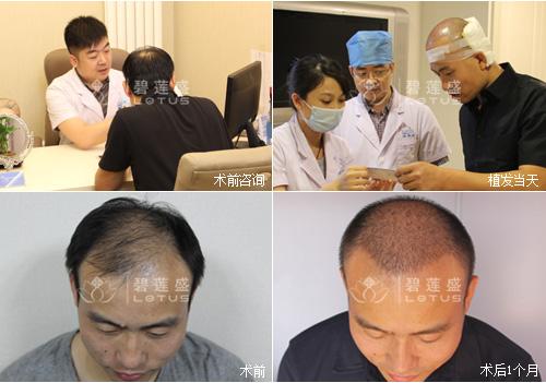 植发手术一个单位是多少 一单位多钱