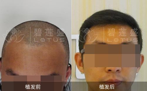 刘警官植发对比