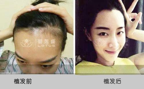 通过织发能得到美人尖吗