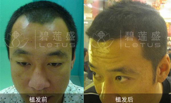 北京权威的植发医院