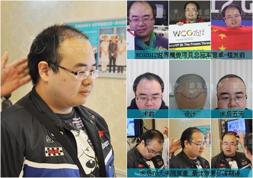 碧莲盛首席专家杨志祥教授在电视台节目《生活早参考》中.JPG