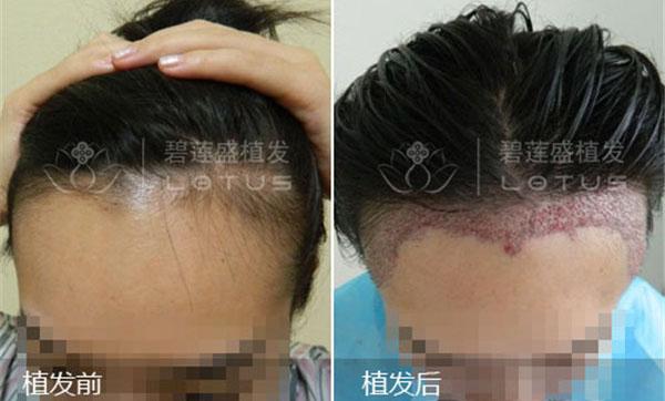 西安可以移植头发的医院在哪