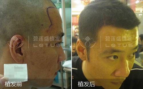 额头两侧鬓角脱发植发手术后效果惊人!