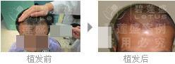 做完二级脱发植发后多长时间可以看到效果?