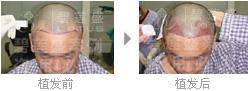 做完二级脱发植发后可以正常行动吗?