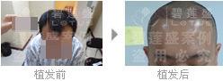 使用药物可以根除二级脱发吗?