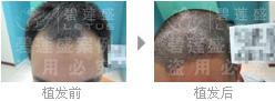 做完二级脱发植发后长出来是真头发吗?