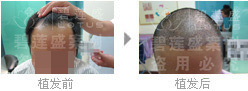 哪里植发医院治疗二级脱发更专业?