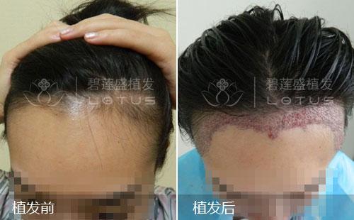 发际线过高植发调整案例效果