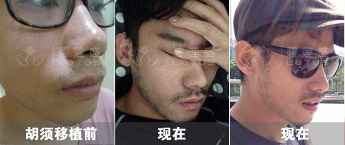 25岁男性SHT无痕种植络腮胡后效果图