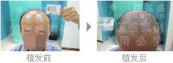 做六级脱发植发手术是一次性的吗?