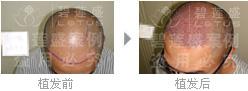 做六级脱发植发后怎么恢复保养?