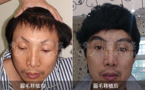 眉毛残缺(男)案例:眉毛种植术后当天