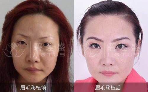 种植眉毛成活率95%以上真实案例效果展示
