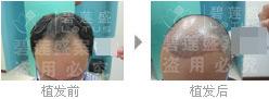 头发在三级脱发植发后多久开始生长?