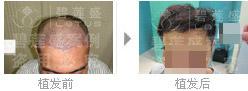 怎么保养三级脱发植发后的效果?